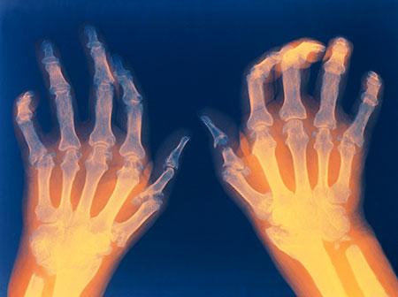 rheumatoid-arthritis-black-seed-oil