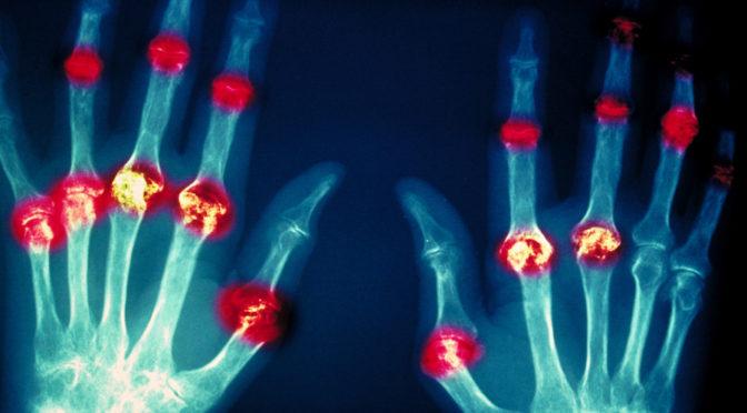 rheumatoid damage